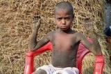 Интернет шокировали снимки маленького мальчика, который медленно